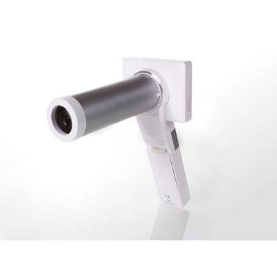 Digital non-mydriatic eye-fundus camera